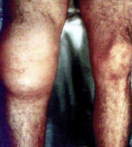Изображение - Воспаление лучезапястного сустава лечение porazhenie-sustavov-pri-tretichnom-sifilise