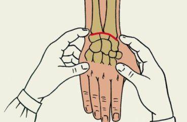 Изображение - Воспаление лучезапястного сустава лечение stroenie