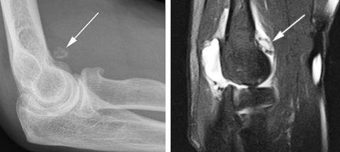 Рентгенография локтевого сустава