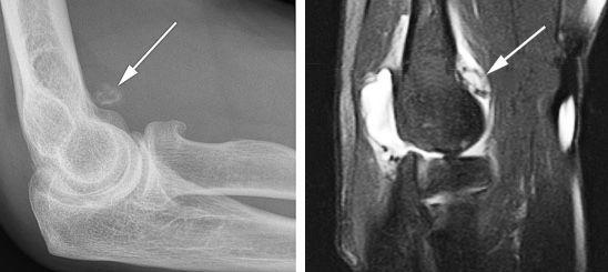 МРТ и рентген локтевого сустава: когда назначают