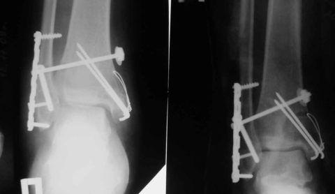 Восстановление целостности костных структур