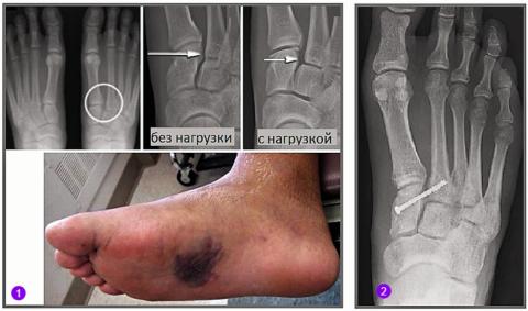 Клиническая картина (1) и фиксация подвывиха 2-го п/п сочленения Лисфранка винтом (2)