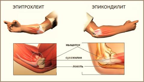 Медиальный эпикондилит (эпитрохлеит) и «Локоть теннисиста» (наружный эпикондилит)