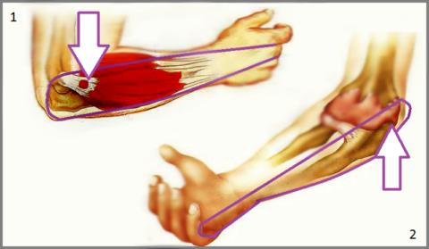Области локализации и иррадиации боли при эпикондилите (1) и эпитрохлеит (2)