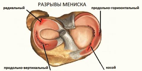 85% травматических повреждений колена – это разрывы хрящевых амортизаторов