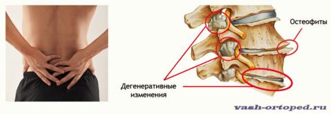 Предполагают, что остеохондроз и спондилоартроз имеют схожие причины возникновения