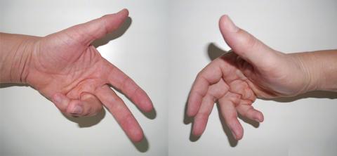 Тендовагинит запястья требует дифференциации с Контрактурой Дюпюитрена (на фото)