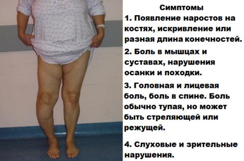 Болезнь Педжета (деформирующий остоз) может привести к саркоме костной ткани