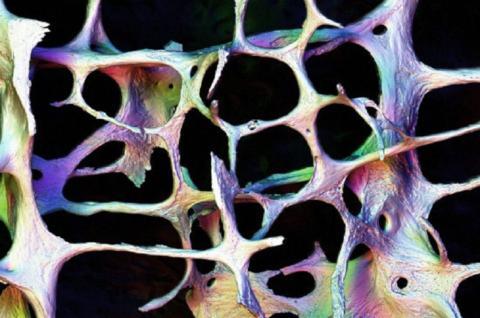 Человеческая костная ткань, поражённая остеопорозом (фото Колина Салтера)
