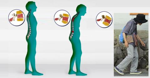 Изменения осанки при остеопорозе позвоночного столба
