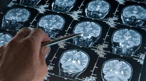 МРТ головного мозга позволяет выявить наличие в нём морфологических изменений