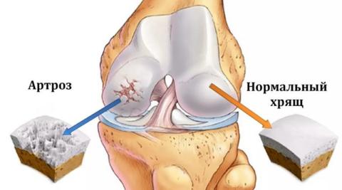 Начальная степень разрушения хряща в коленном суставе
