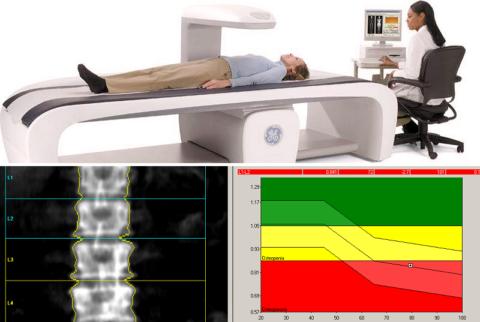 Обследование ДРА является «золотым» стандартом диагностики остеопороза