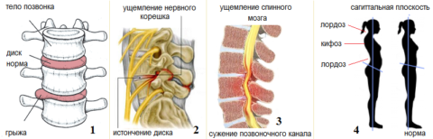 Осложнения остеохондроза – грыжа диска (1), радикулит (2), стеноз (3), искривление (4)