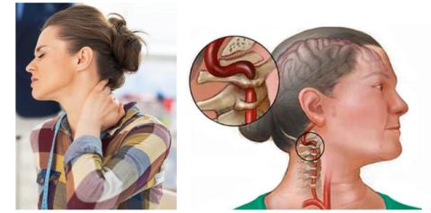 Резкое движение головы при стенозе позвонковой дужки может вызвать приступ ишемии