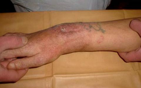 Сильный ушиб, золотистый стафилококк, ангина – причины хронического полиомиелита