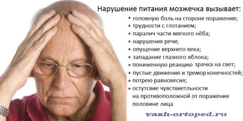 Синдромный комплекс Валенберга-Захарченко