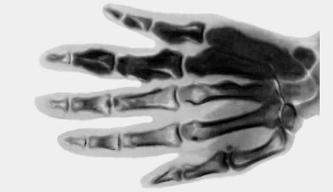 Тёмные кости на снимке – результат остеосклероза, увеличивающего плотность ткани