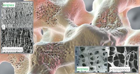 Тонкие срезы ткани тела позвонка (1) и трубчатой кости (2)