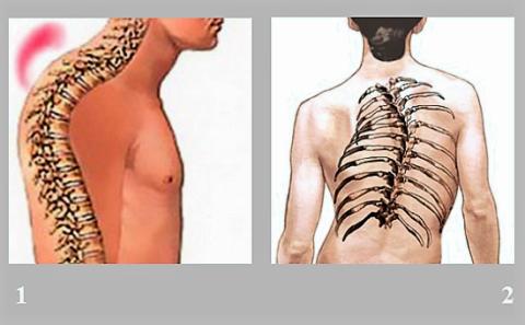 Боль и ущемление нерва на уровне груди также вызывают кифоз (1), сколиоз (2)