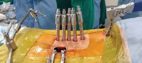 Спондилодез (обездвиживание) грудопоясничного перехода