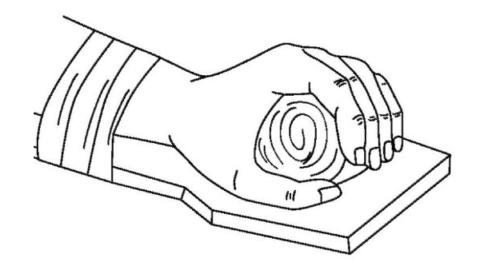 Защита травмированного лучезапястного сочленения при переезде в травмпункт