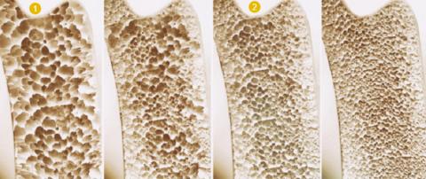 До (1) и после (2) лечения препаратами, содержащими Ibandronic acid (C9H23NO7P2)