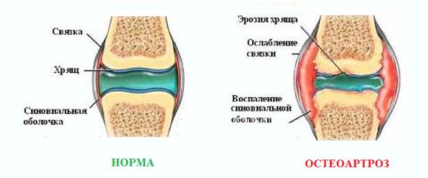 Основная причина проблем с синовиальной жидкостью – артрозы