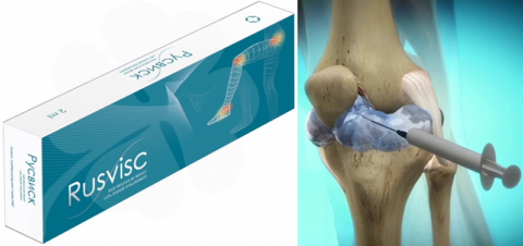 Отечественная искусственная смазка-имплант – оптимальное сочетание цены и качества