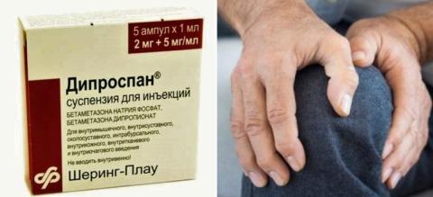 Периодичность инъекций Дипроспана (бетаметазона) – 1 раз в 1,5-2 месяца