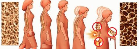 Остеопороз «предпочитает» костную ткань тел позвонков, область шейки бедра и запястья