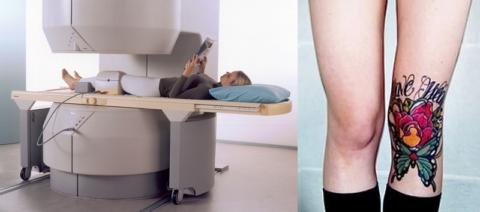 При МРТ колена татуировка на ноге может стать причиной образования сильного ожога