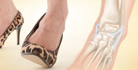 Что такое сочленение Шапара хорошо знают спортсмены и женщины, ходящие на высоких каблуках