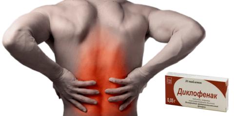 Обезболивающие таблетки №1 при болях в пояснице