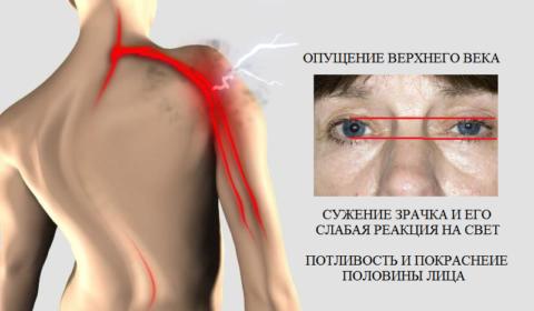 Один из признаков шейно-грудной радикулопатии (C8) – синдром Бернара-Горнера