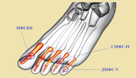 Соединения 13 фаланг пальцев нижней конечности (3 примера)