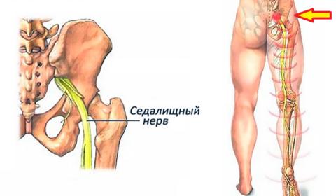 Зачастую ишиас или боли по ходу седалищного нерва – это хронизация пояснично-крестцового радикулита
