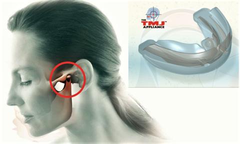 Форма крыловидной базы TMJ Appliance ™ великолепно расслабляет жевательные мышцы