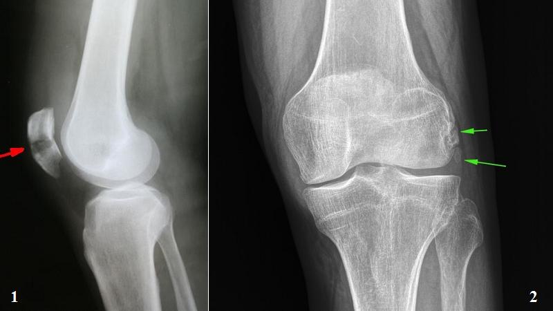 На рентгене: 1 – перелом надколенника; 2 – рассекающий остеохондрит (суставная мышь)