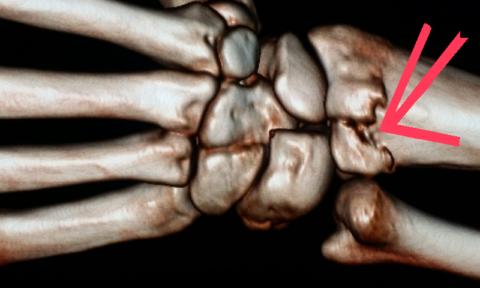 Мультиспиральная компьютерная томография лучезапястных суставов (МСКТ)