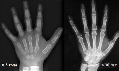 Рентген кисти и ее сочленения с костями предплечья