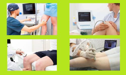 Стандартные положения по УЗИ-протоколу осмотра сочленения колена