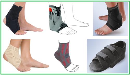 Некоторые виды категорий ортопедических изделий для лечения голеностопа