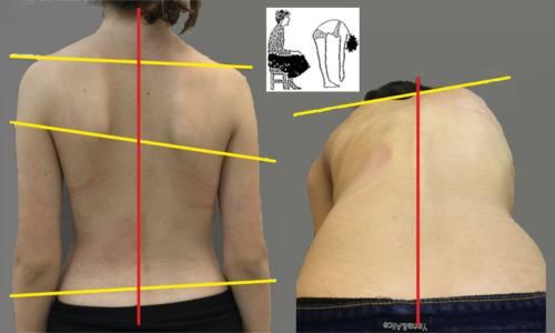 Характерные изменения осанки при II ст. сколиотической болезни