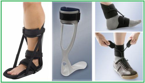 Разновидности туторов при синдроме падающей стопы