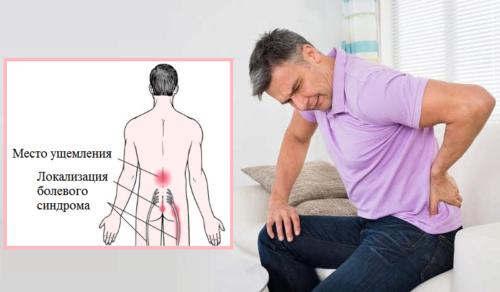Радикулопатия — это проявление воспаления корешков спинного мозга