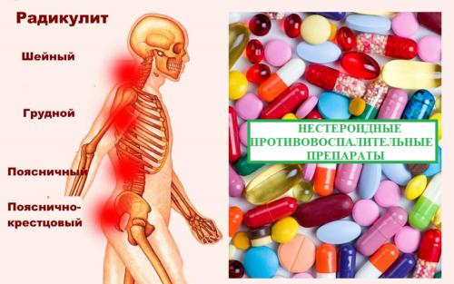 Обезболивающие препараты первого выбора при радикулите — НПВП