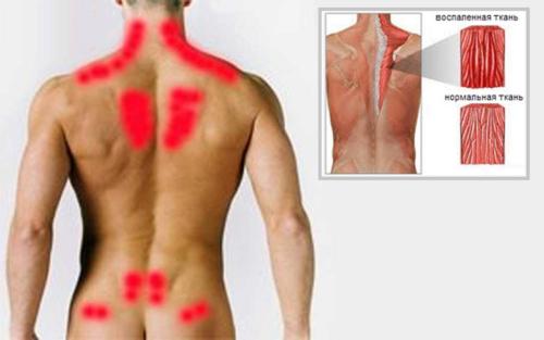 Области спины, наиболее подверженные мышечному напряжению и воспалению