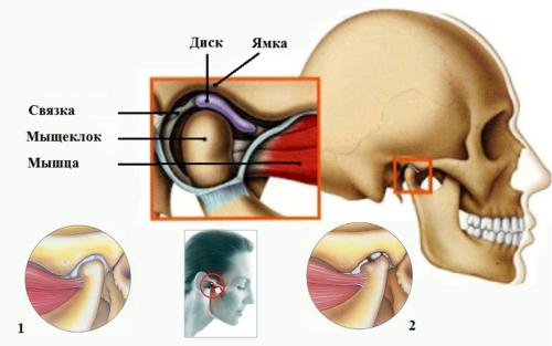 Строение височно-нижнечелюстного сочленения: здоровый (1) и пораженный остеоартрозом (2)