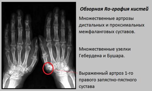 Снижение суставной щели, остеофиты и краевые дефекты первого правого запястно-пястного сустава